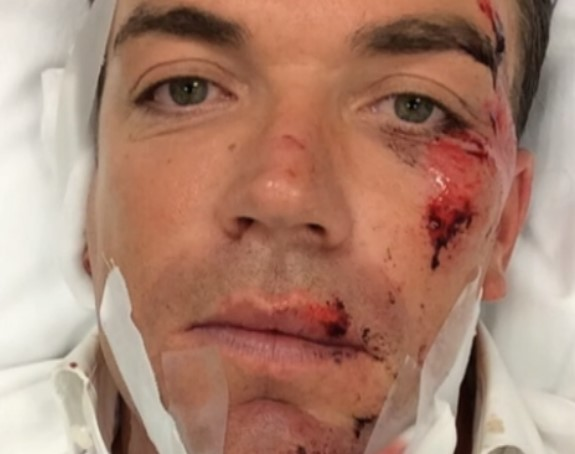 Robert Doornbos badly injured in a scooter accident in Amsterdam